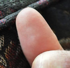 photo of man's thumb pad totally healed with therapeutic essential oils from deep cut