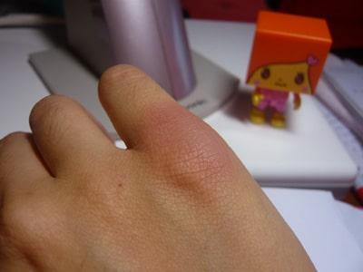 Helichrysum Essential Oil Heals Life's Bumps & Bruises