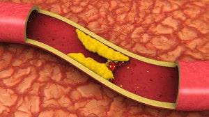 cholesterol plaque in blood vessel illustration