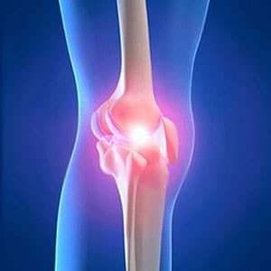 knee cartilage injury illustration