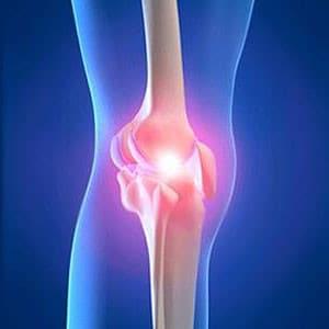 knee cartilage injury illustration