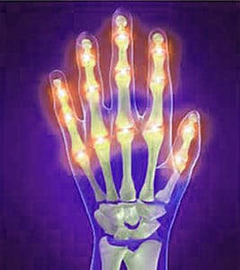 Illustration of arthritis inflamed hand xray. Use ForSOOTHE™ essential oils blend for headaches, joint pains.