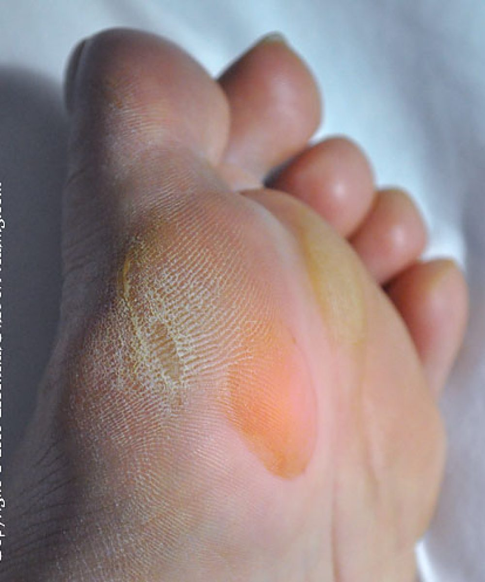 hiking blister on ball of foot