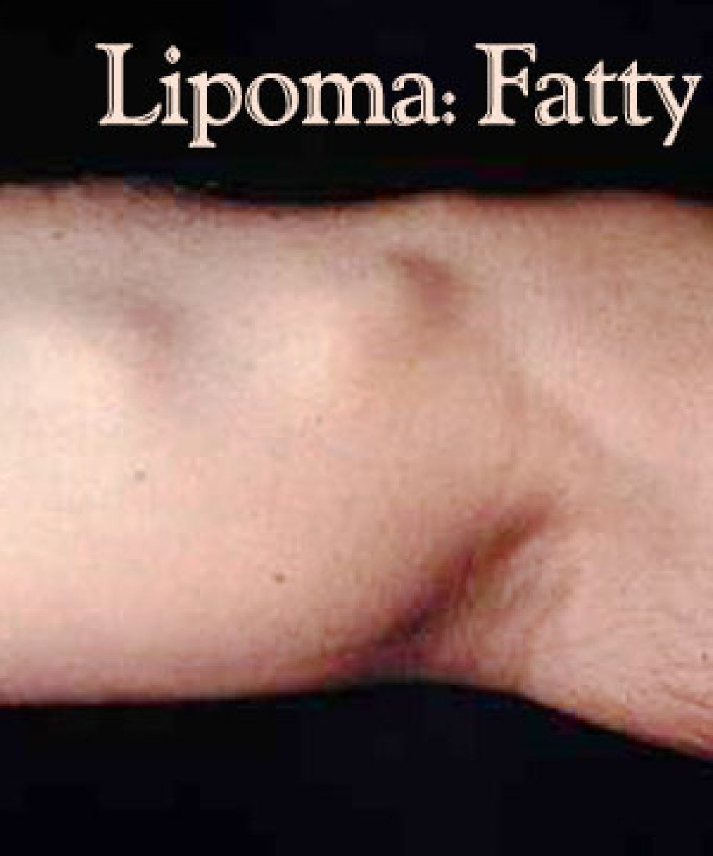 lipoma fatty tumors on arm